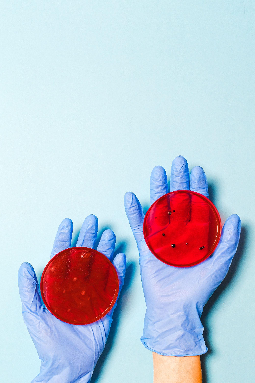 Hände halten Petrichalen mit Bakterien.